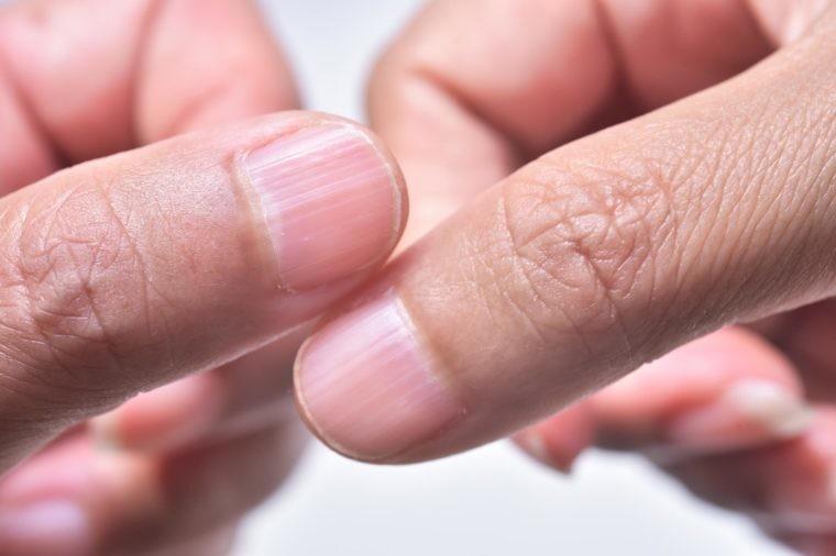 Очень короткие ногти без маникюра